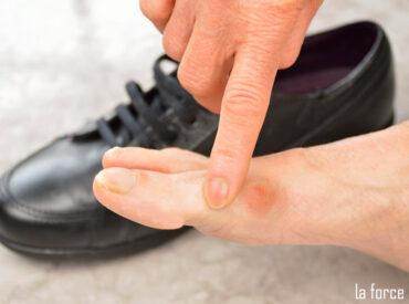 Đi giày bị đau ngón chân: Nguyên nhân và cách khắc phục